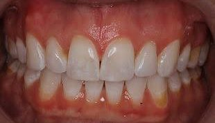 Gingivectomy After
