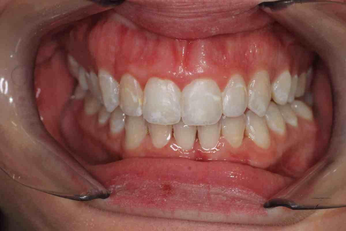 Invisalign 2 after