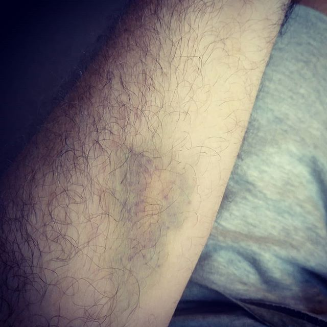Veins, what veins?#autohash #Torrevieja #Spain #ComunidadValenciana #medicine #pain #injury #healthcare #medical #illness #wound #accident #skin bruise #vein #arm #people #disease #joint #back  #scar #nature #body - from Instagram