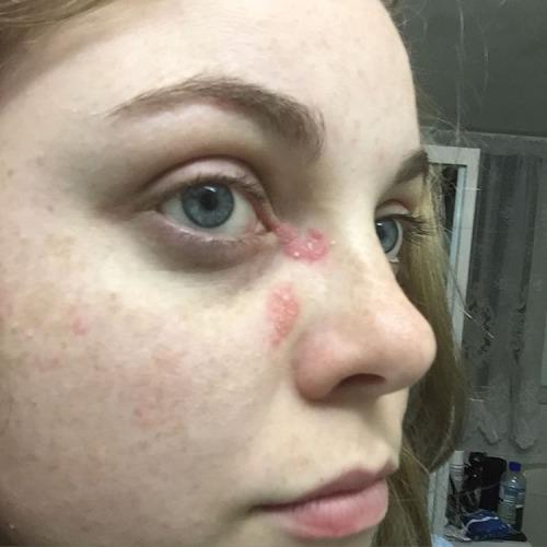 Псориаз на лице: фото, симптомы и лечение. Выход есть!