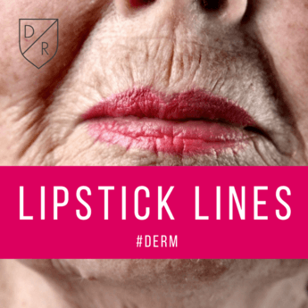 How to: Lipstick Lines