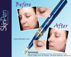 skinpen-before-after2