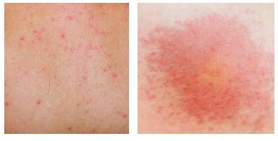 Красные пятна похожие на ожоги: фото, все причины, лечение