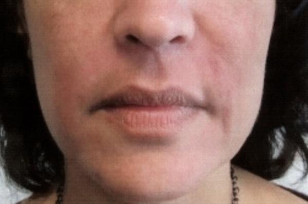 After-Filler - Botox