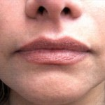 Facial Filler After
