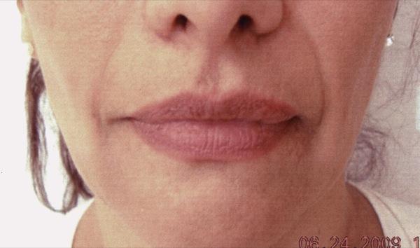 Before-Facial Filler