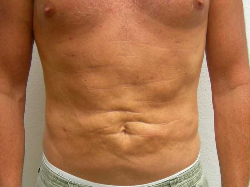 After-VelaShape III and Liposuction