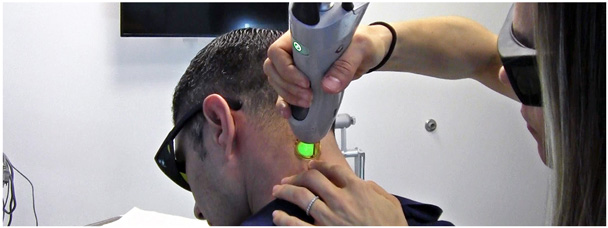 Laser Hair Removal for men at Contour Dermatology