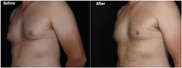 Male breast reduction at Contour Dermatology