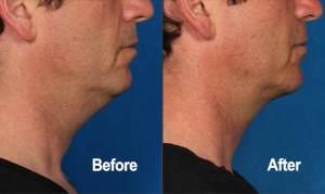 Kybella, antes y después, paciente real, vista lateral, hombre