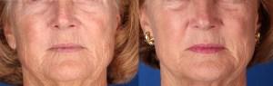 Renovación facial total. 3 tratamientos con láser en la misma sesión de tratamiento.