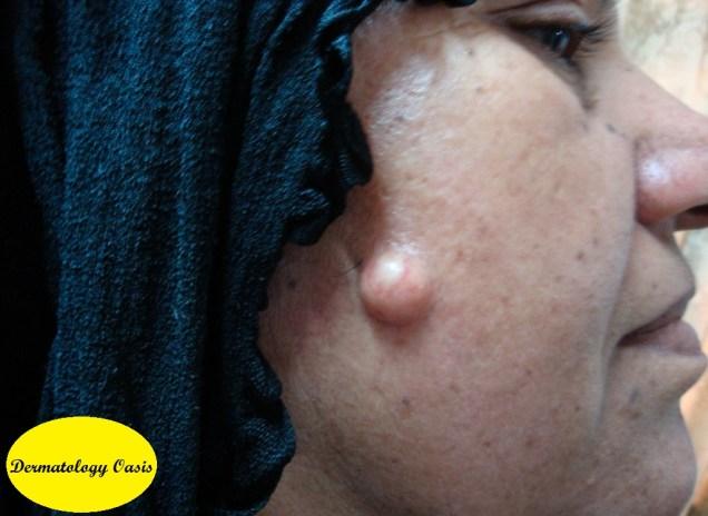 Epidermoid cyst