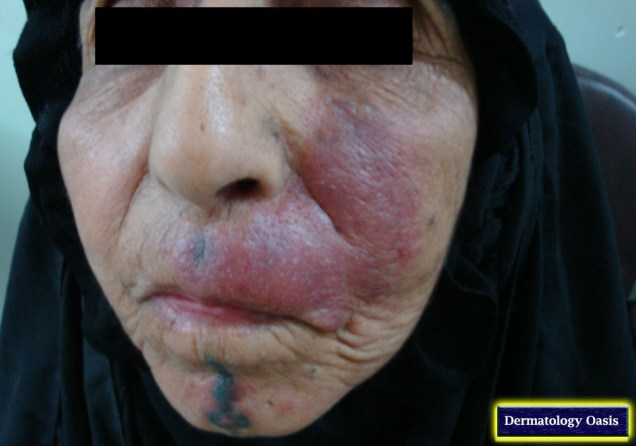 Cutaneous leishmaniasis – Dry type