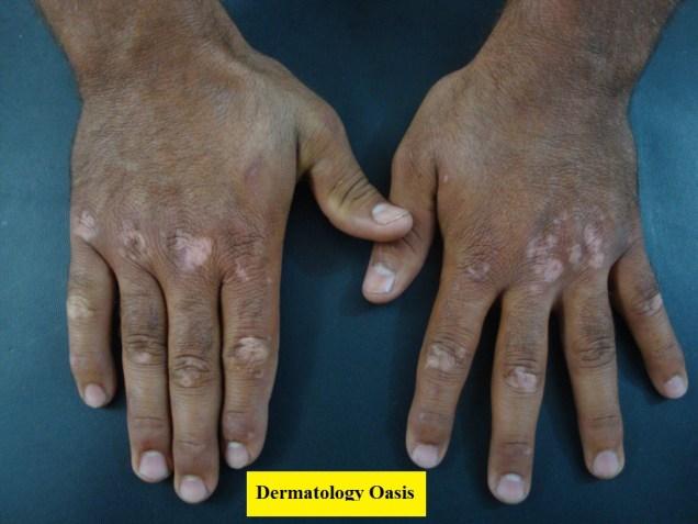 Acral vitiligo