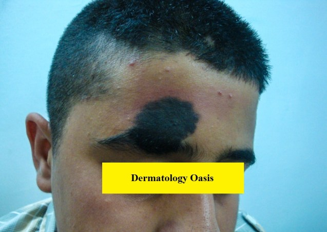 Congenital melanocytic nevus