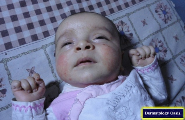 Infantile atopic dermatitis
