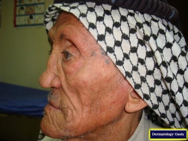 Lepromatous leprosy2