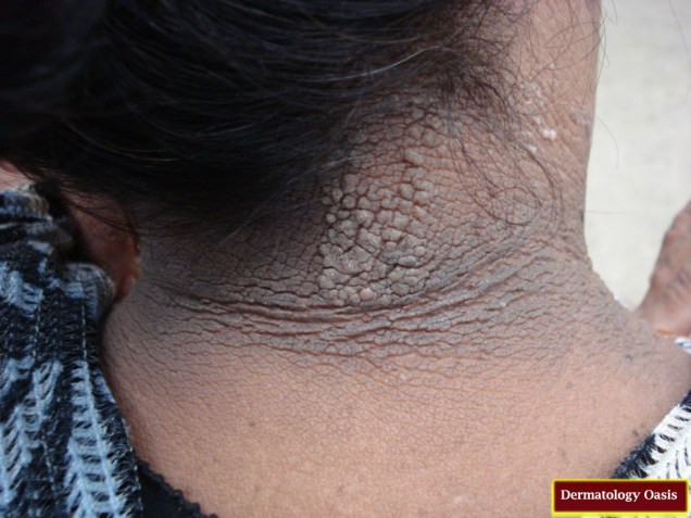 Malignant acanthosis negricans