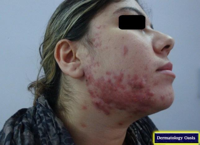 Nodulocystic acne3