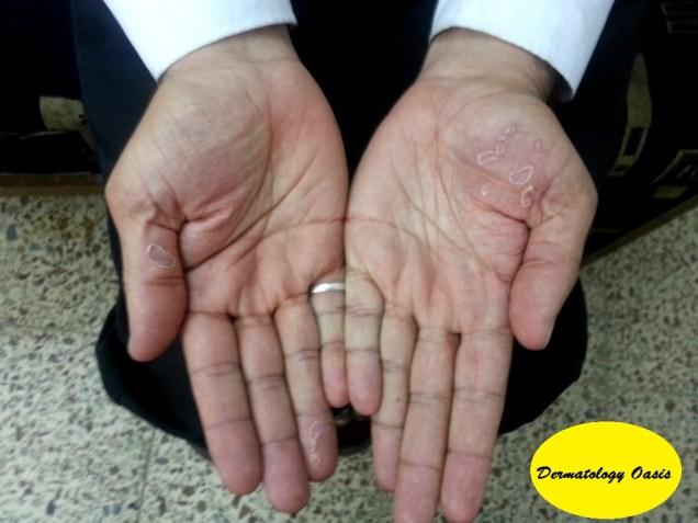 Palmar psoriasis