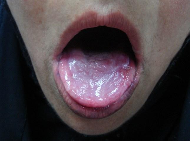 oral-lichen-planus