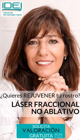 Rejuvenecimiento-facial-sin-cirugia-con-laser