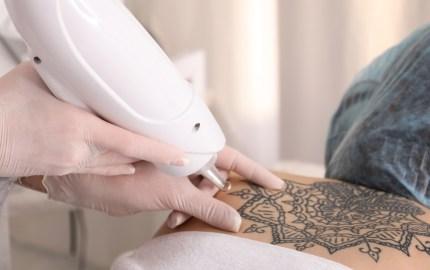 Los tatuajes (o su eliminación) causan daños irreversibles en la piel