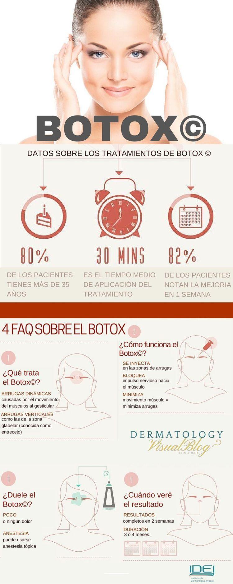Qué es el Botox estético y para que sirve