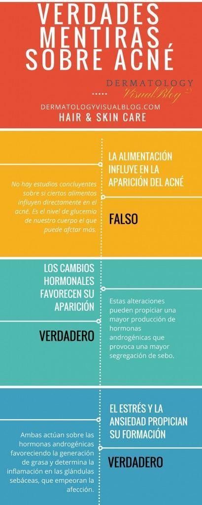 Verdades y falsos mitos sobre el acne