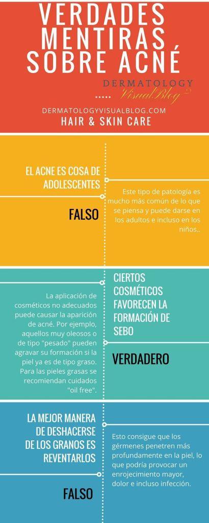 Verdades y mentiras sobre el acne