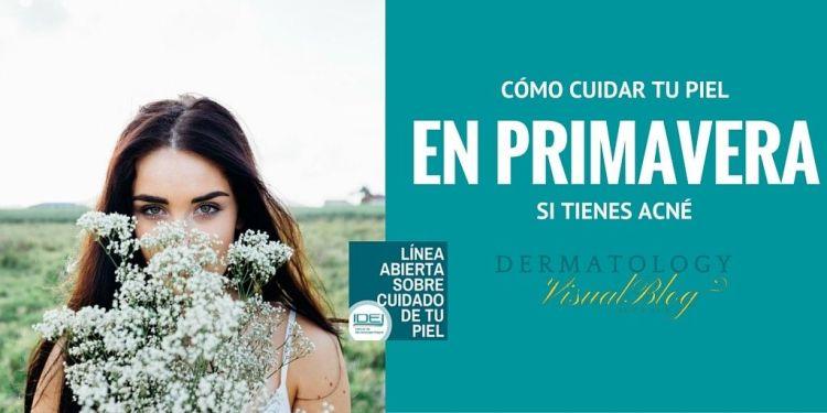 ACNE Y PRIMAVERA. CONSEJOS DEL DR. SANCHEZ VIERA