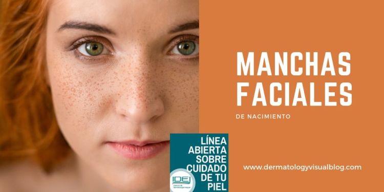 Manchas faciales