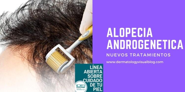 alopecia androgenética nuevos tratamientos