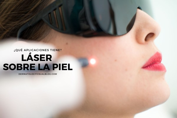Aplicaciones del laser sobre la piel. Respuestas de los especialistas