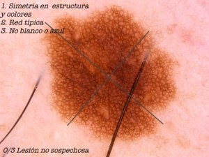 Dermatoscopia Nevus melanocítico juntural