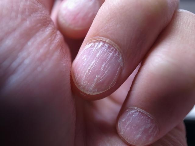 Pictures Psoriatic Arthritis 2