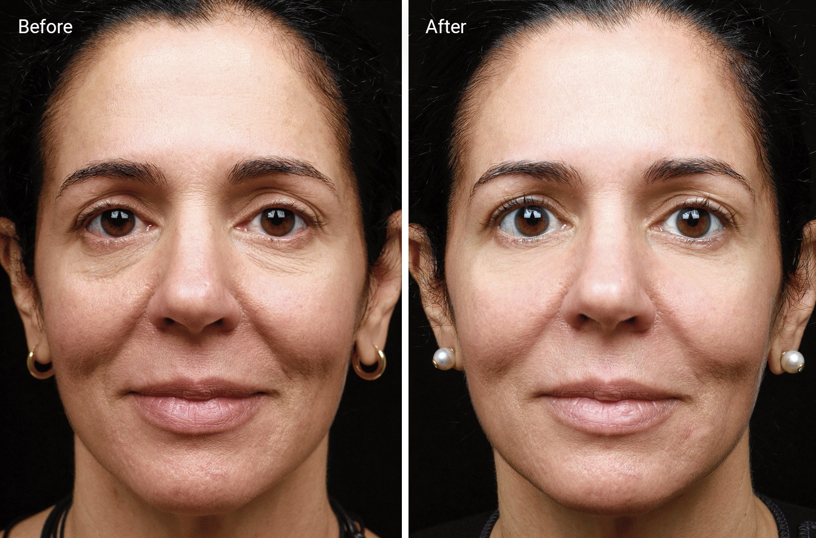 Radio Frequency Skin Tightening Does It Work And Is It Safe