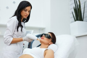 laser skin resurfacing acne scars