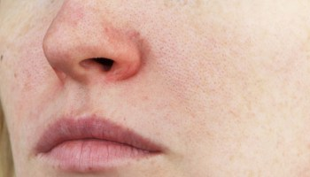 Laser Treatment For Rosacea Efficacy Before And Afters Cost And