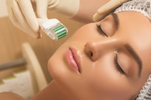 microneedling for hyperpigmentation