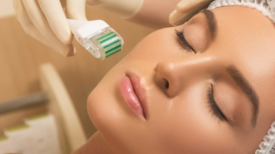 microneedling for hyperpigmentation