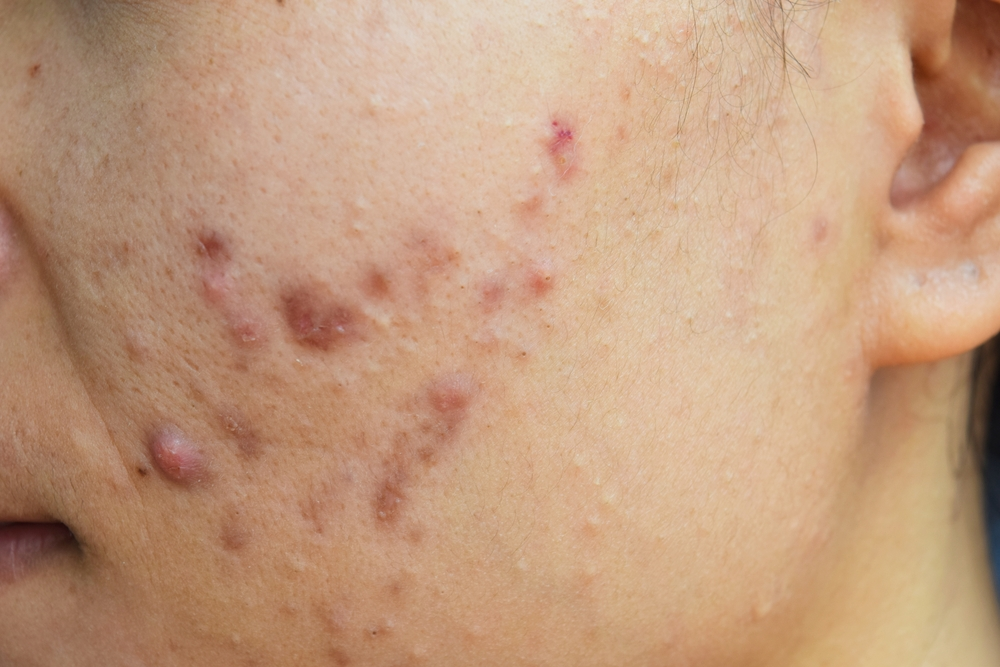 Nodular Acne Treatments Prevention Natural Remedies And More