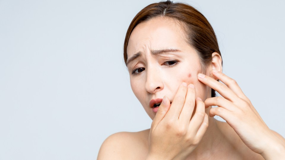 Clindamycin for Acne