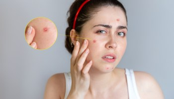 Subclinical forehead get on rid acne of Subclinical Acne: