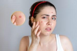 acne pustules