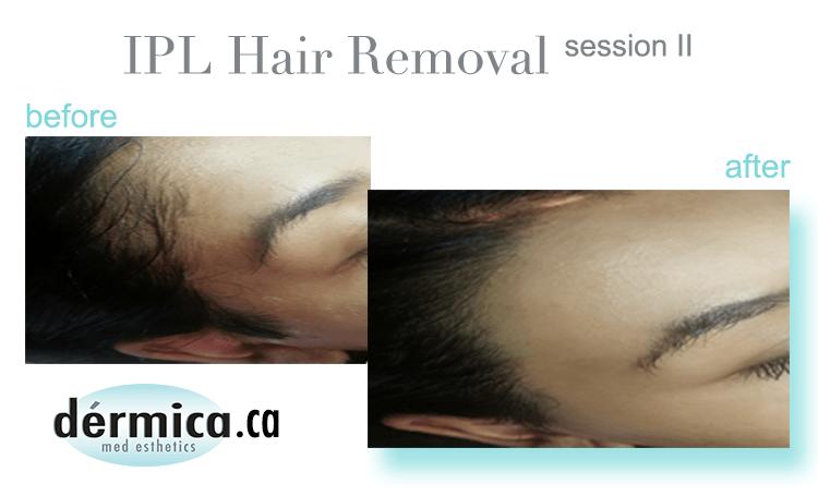 dermica ipl hair removal edmonton