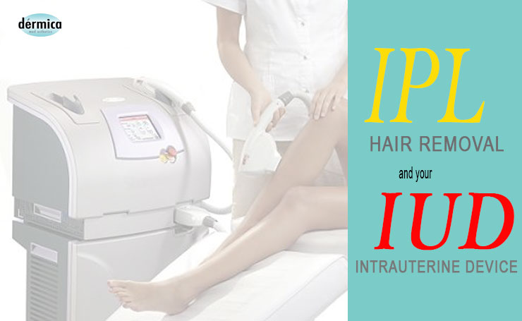 ipl or laser hair removal and IUD