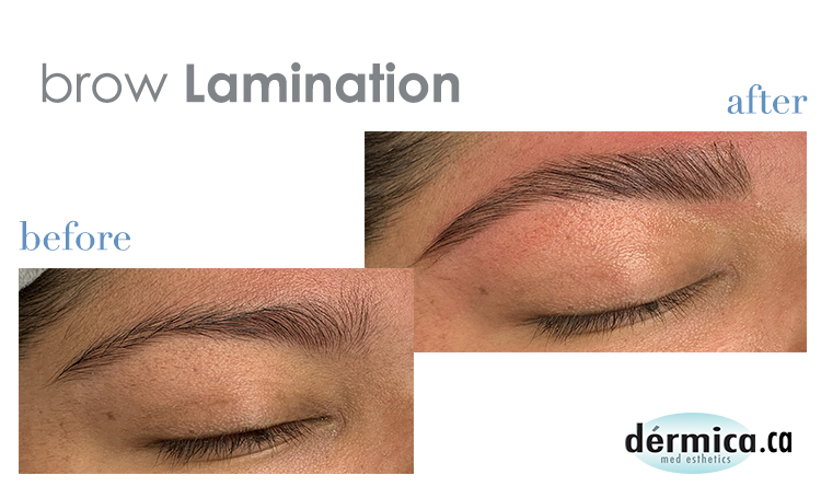 Before and After Brow Lamination at Dérmica MedEsthetics