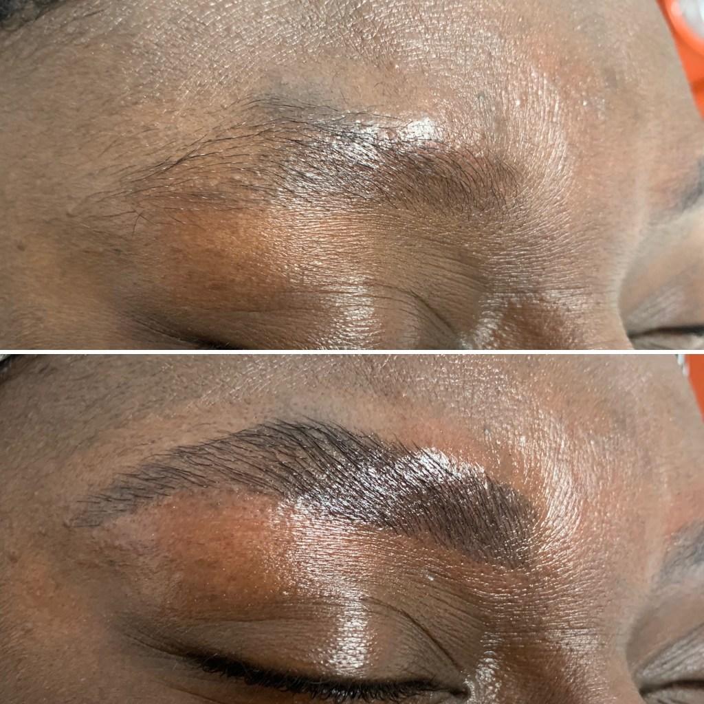 eyebrow enhancement