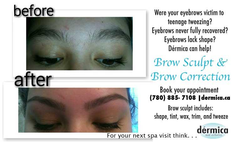 brow correction at Dérmica MedEsthetics
